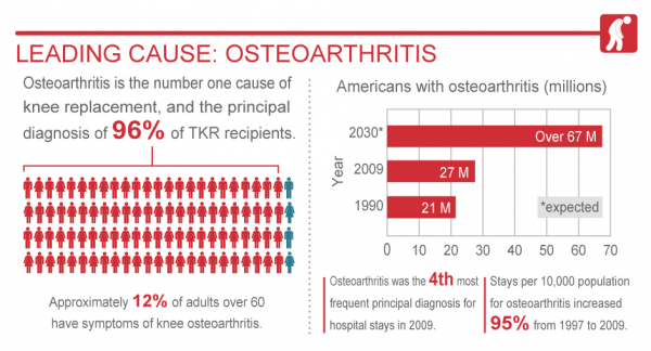 osteoarthritis and golf