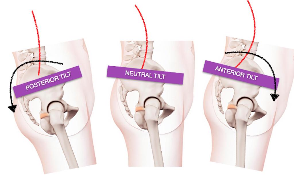 The Retroverted And Retroflexed Uterus