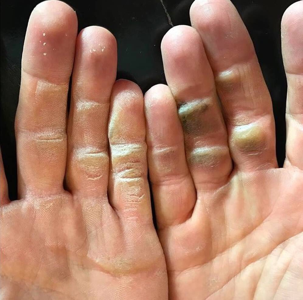 A photo of Alex Noren's hands after a practice session.